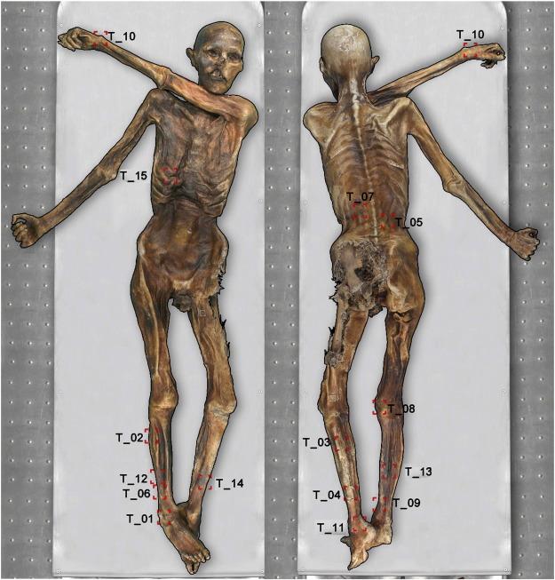 Ötzi the Tatooed Iceman
